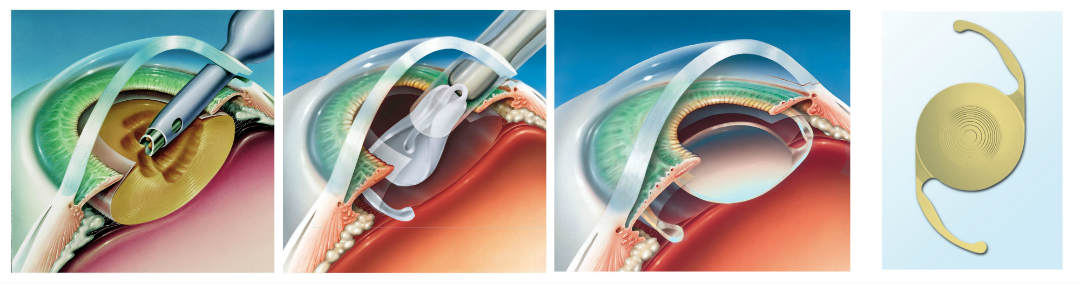 How to write an Introduction for a research paper on Cataract Sergery?