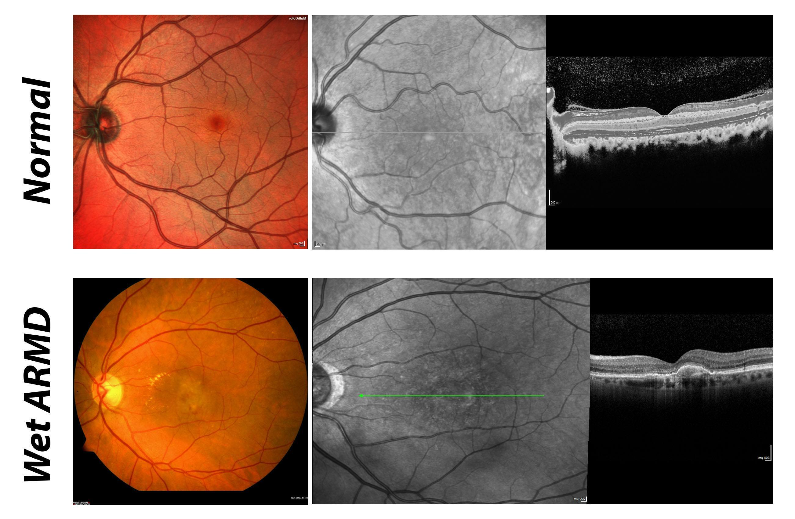 Retina (ARMD) and Vitreous - The ELZA Institute