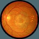 retina-circle2-150