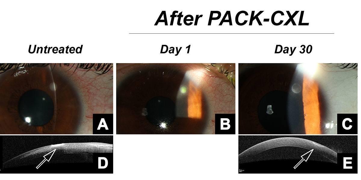 PACK-CXL in fungal keratitis