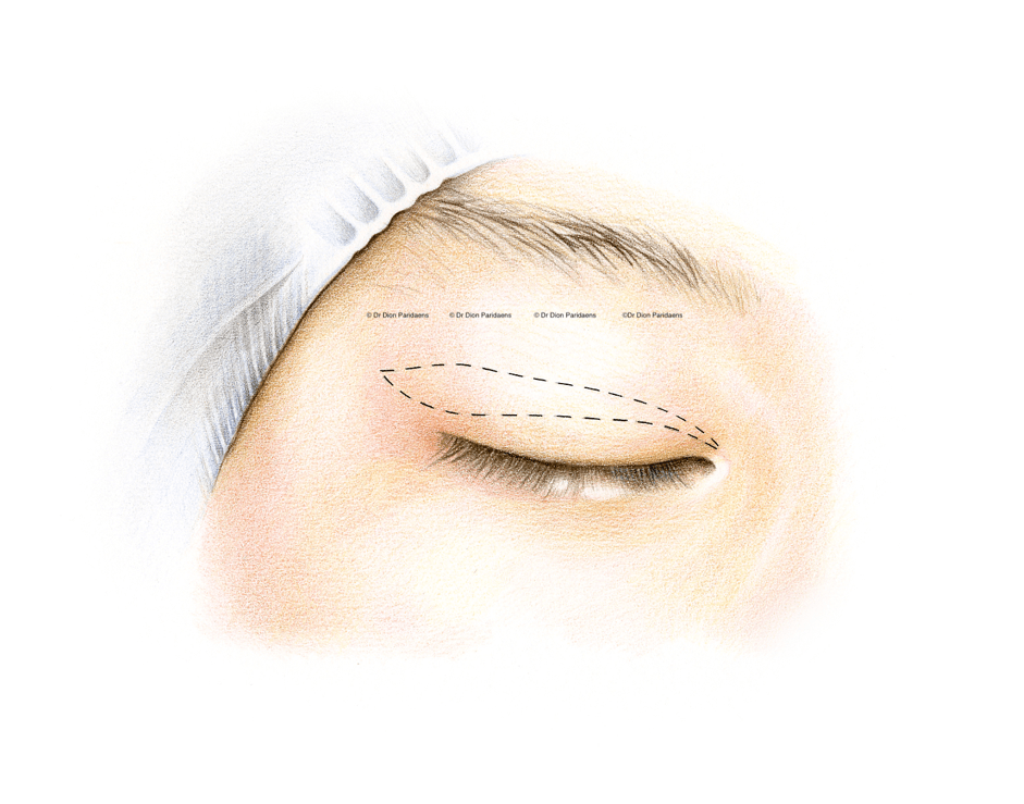 After careful evaluation of the upper eyelids and the eyelid features on old photographs, combined with a comprehensive understanding the wishes of the patient, marks are made on the eyelids at the desired location. Careful attention is paid to achieving symmetry between the upper eyelids, with dimensions being measured at this point in the procedure. This is followed with several injections in the eyelids under monitored anaesthesia.