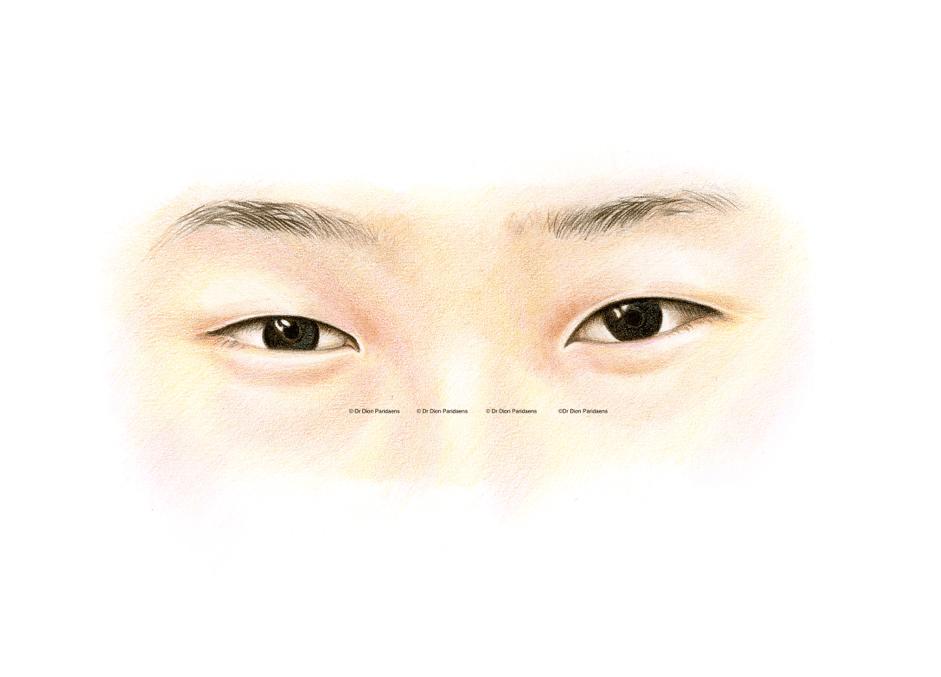 Asian upper eyelid - without skin fold. Preoperative image. Epicanthal folds on nose side upper eyelid.