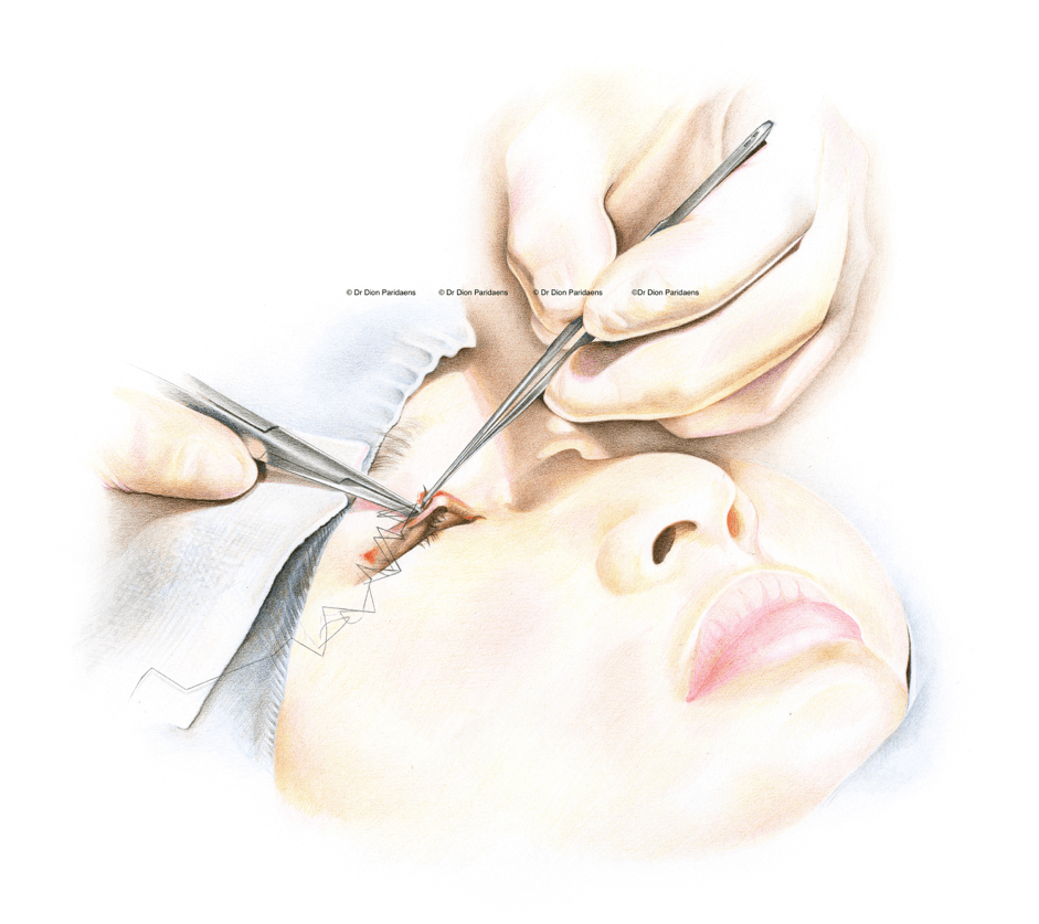 The eyes remain closed during the procedure. The skin surplus is surgically removed, and careful coagulation of the blood vessels is performed to prevent blue discoloration (bruising) of the skin after the procedure. If a skin fold needs to be accentuated or made, this is done with soluble sutures. The skin is then closed with a continuous suture which can be removed after 5–7 days.