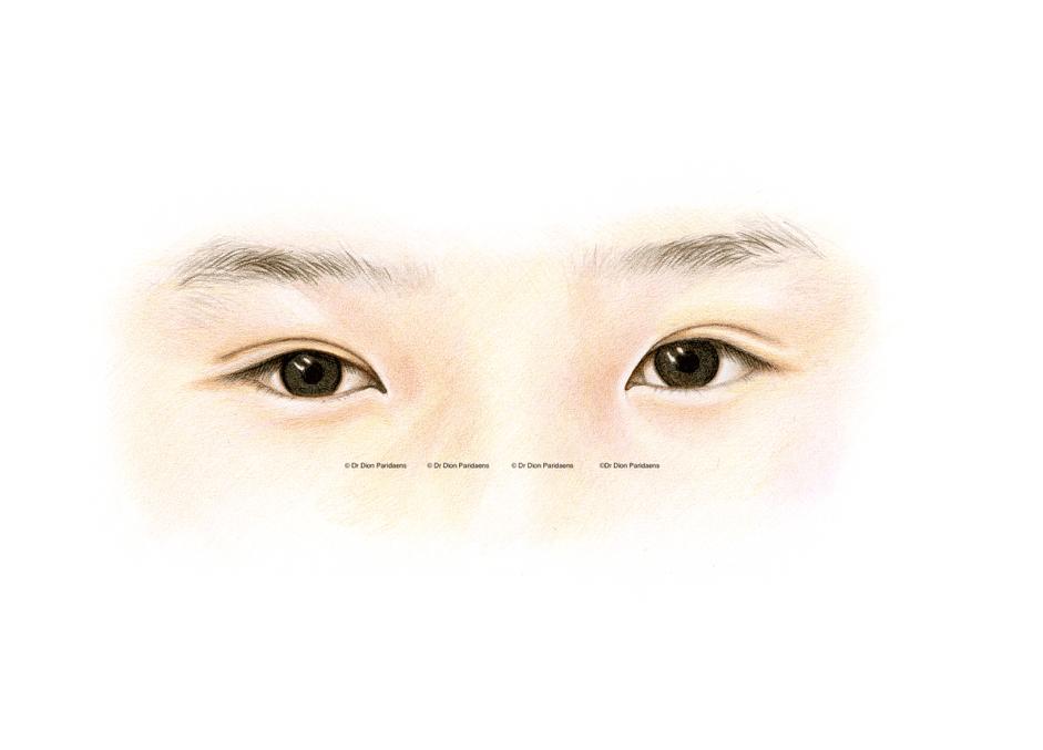 Asian upper eyelid - with skin fold. Postoperative image.