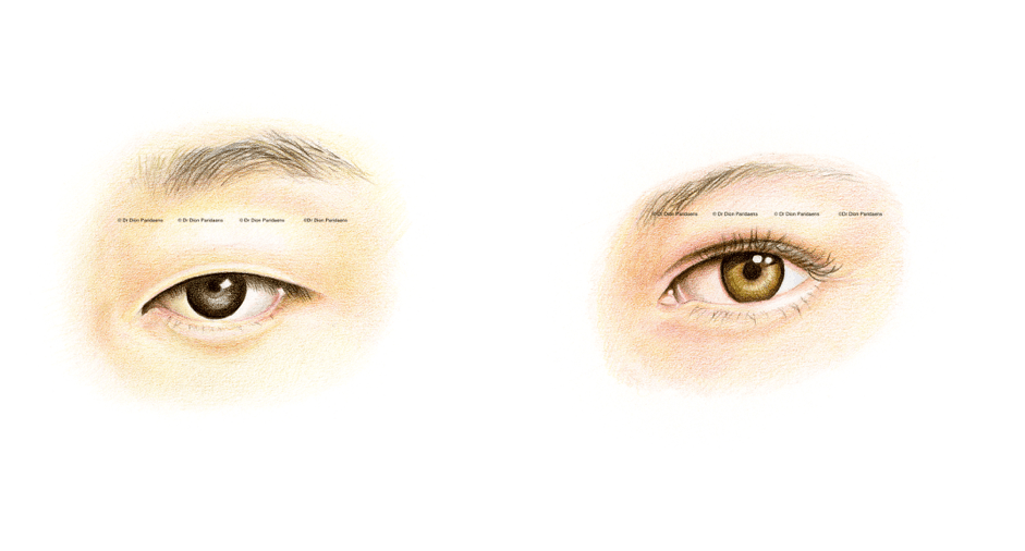 Blepharoplasty Eyelid Surgery In Asian Eyes Elza Institute