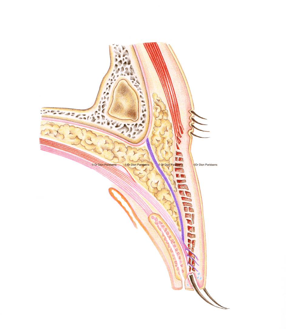 Cross-section through Asian upper eyelid. Notice the purple line, which represents the connective tissue sheet (septum orbital), which continues towards the eyelash base; the fat behind this sheet extends downwards towards the eyelid lashes.