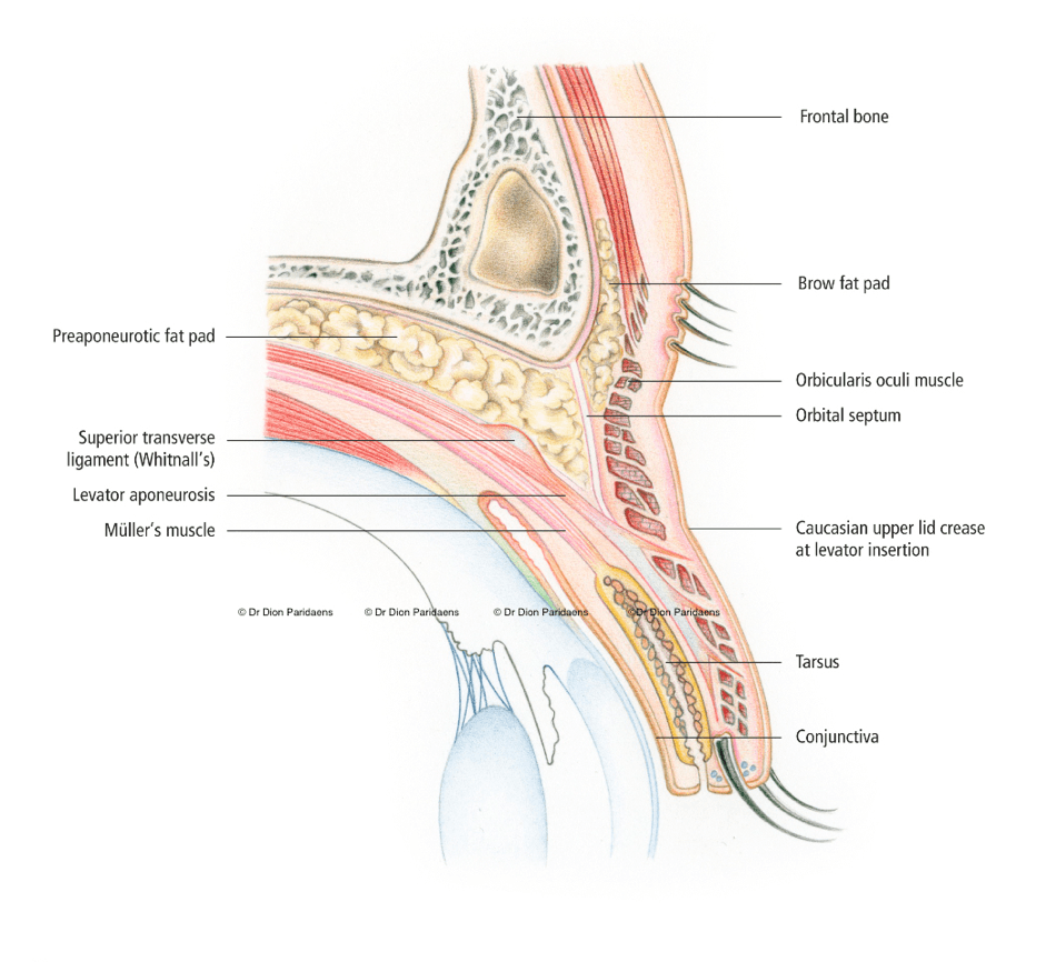 The upper eyelid is a complex structure that primarily has the task of protecting the eye, but also has a great influence on the patient's appearance (e.g. they look energetic, or tired). The tarsus gives firmness to the upper eyelid and has contains the Meibomian glands which provide the tear film on the ocular surface with an oily substance (sebum), which is important for lubrication. The levator and Müller muscles ensure that the eyelid can be lifted. The eyelashes protect against dust and debris and the skin gives general protection at the front of the eye. The sphincter muscle (M. Orbicularis) enables active eye closure and runs just below the skin. The orbital septum is an important barrier against infection, and also stops a bruise from going to the orbit.
