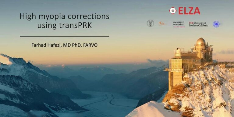 High myopia corrections using transPRK featured image