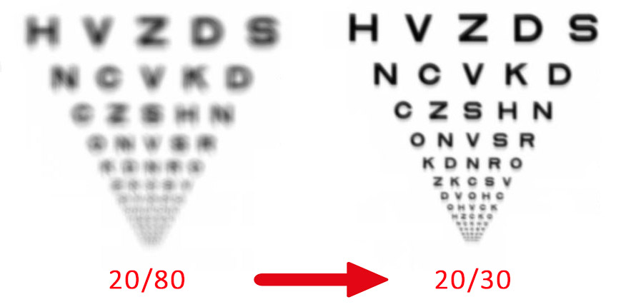 A new fitted scleral lens improved visual acuity from 20/80 to 20/30