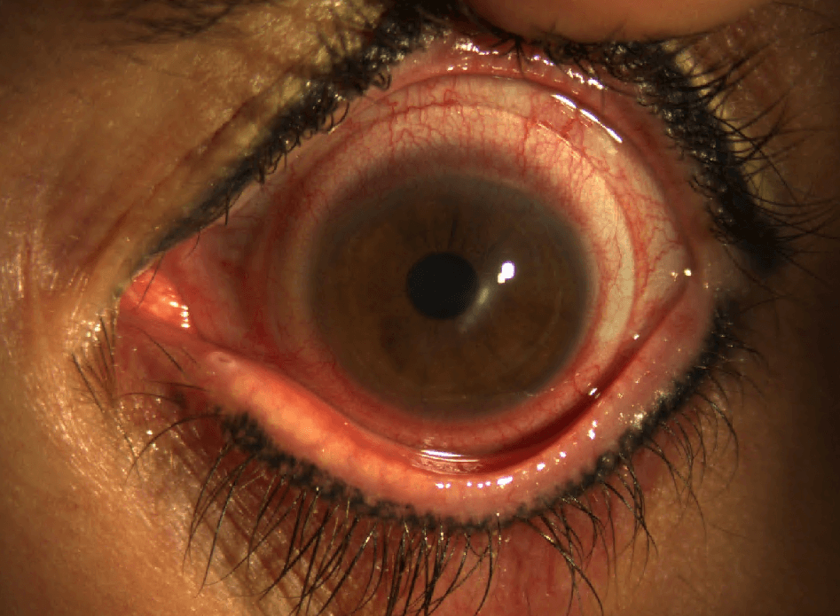 The patient complained of red eyes and pain