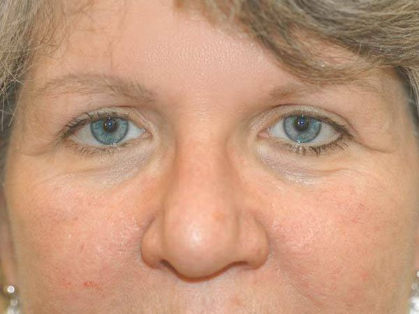 Dermatochalasis-female-3b