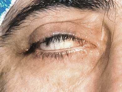 Facialis-01-aspect
