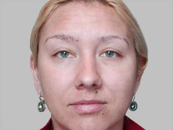 Ptosis-female-3bsmall