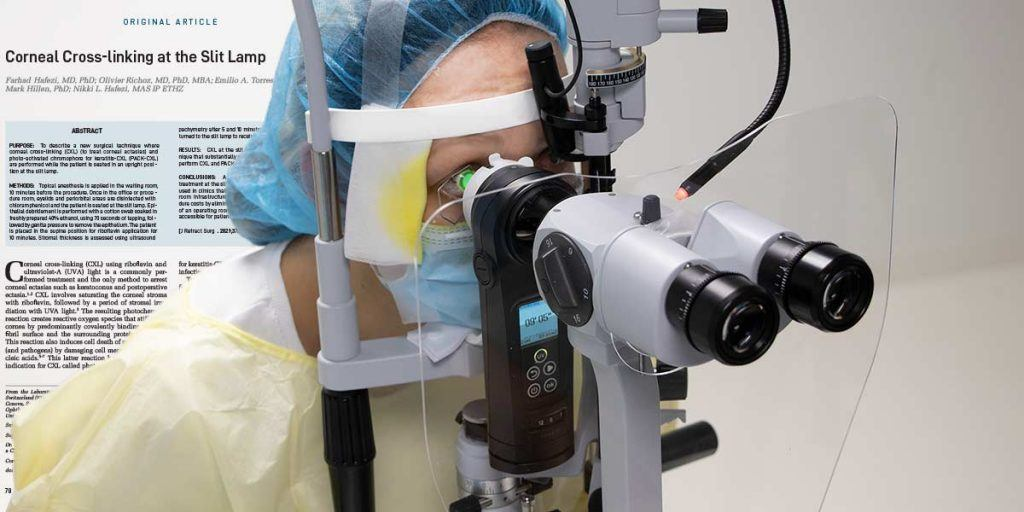 Cross-Linking at the Slit Lamp now published in the Journal of Refractive Surgery (JRS)